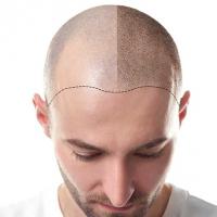 Haartransplantatie in Turkije